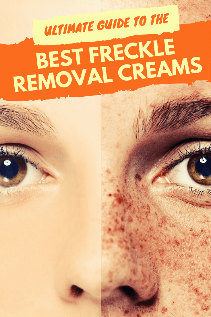 Ultimate Guide To The Best Freckle Removal Creams And Dark